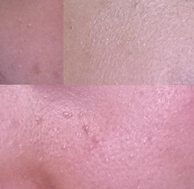 skin bumps